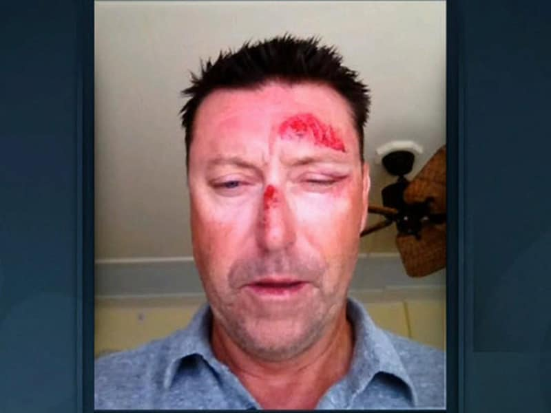 2. Allenby 'kidnapped'
